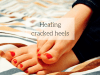 ayurvedic medicine for cracked heels
