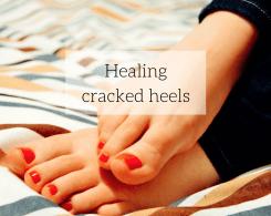 ayurvedic medicine for cracked heels
