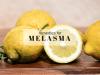 ayurvedic treatment for melasma