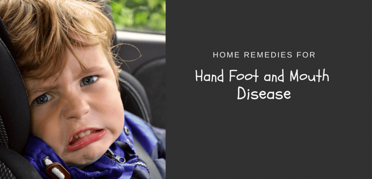 home remedies for hand foot and mouth disease in children