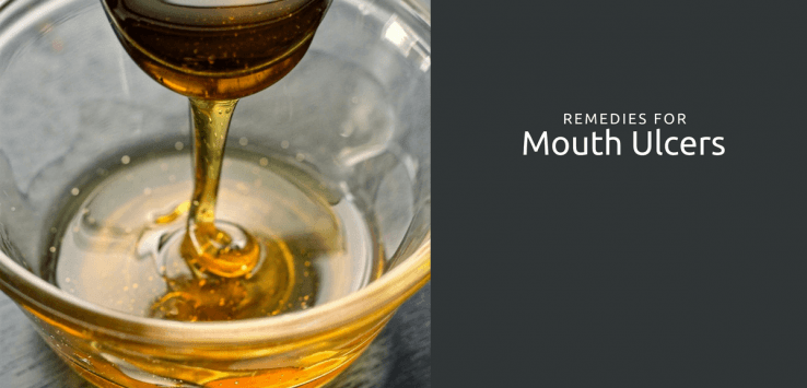 treatment of mouth ulcers in Ayurveda