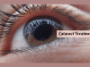 cataract treatment in ayurveda