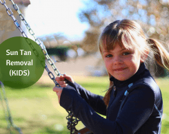 Sun Tan Removal For Kids