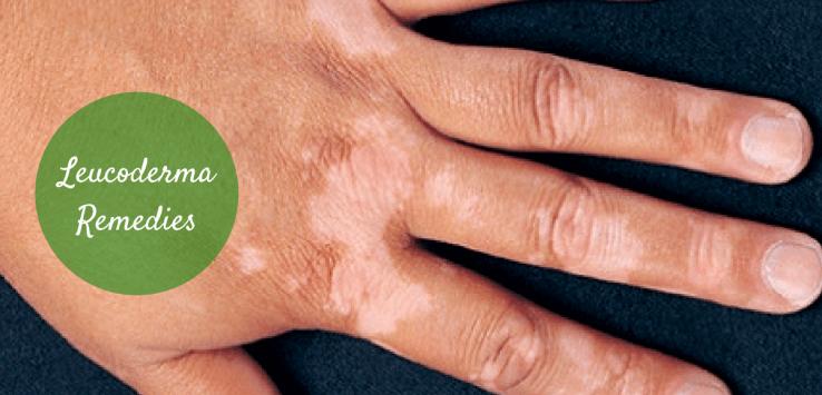 leucoderma remedies