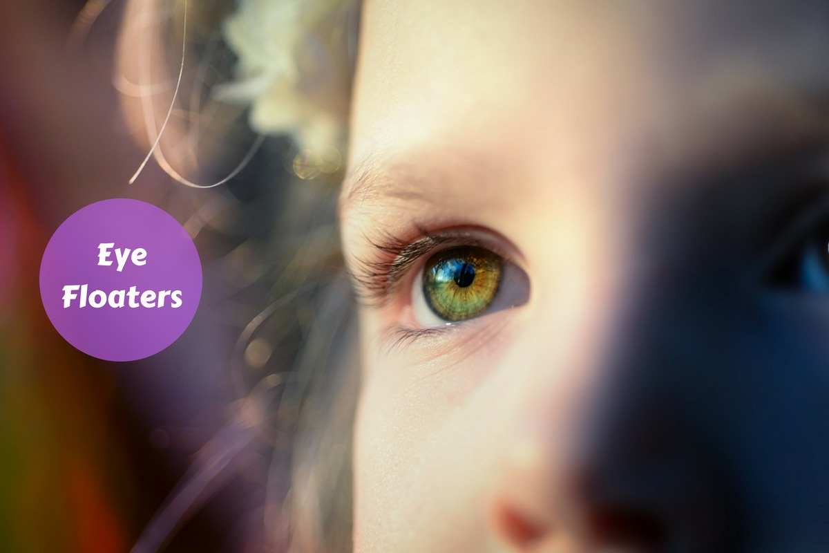 Eye Floaters: Causes, Symptoms And Treatment