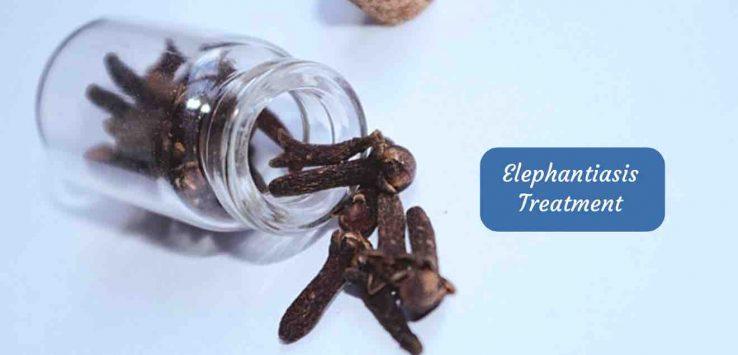 Elephantiasis Treatment