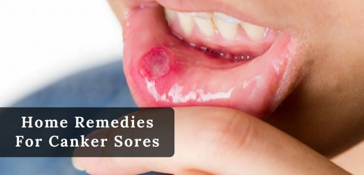 How to get rid of canker sores _ Ayurvedum