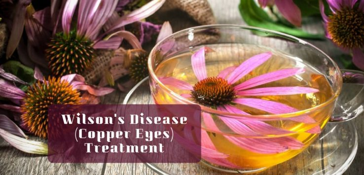 wilson's disease treatment _ Ayurvedum