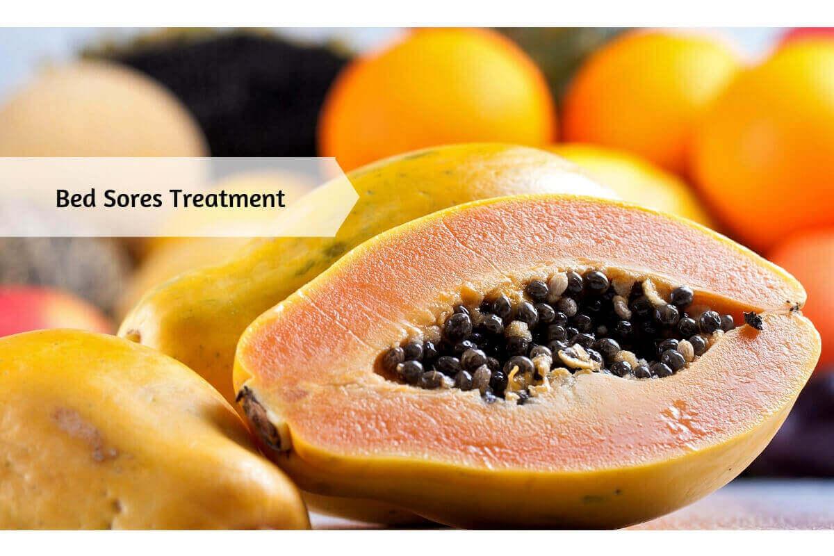 Bed Sores Pressure Ulcers Symptoms Preliminary Care