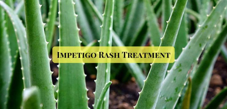 Impetigo treatment _ Ayurvedum