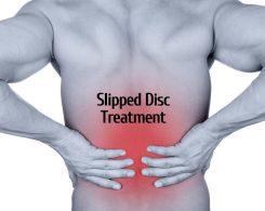 Slipped Disc treatment _ Ayurvedum (1)