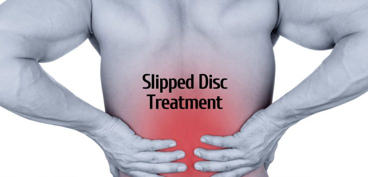 Slipped Disc treatment _ Ayurvedum (1)
