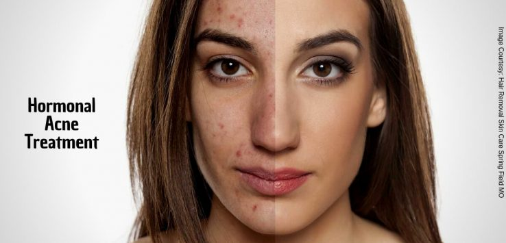 How to get rid of hormonal acne _ Ayurvedum