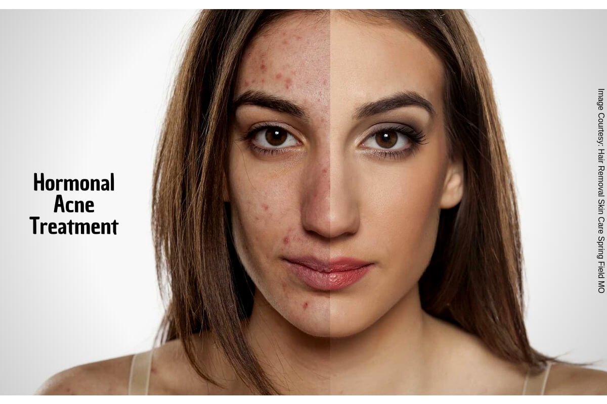 How To Get Rid Of Hormonal Acne Without Using Chemical Drugs?