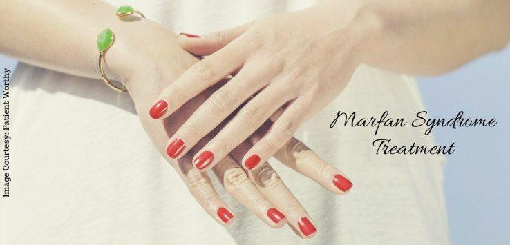 marfan syndrome _ Ayurvedum