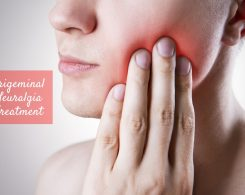trigeminal neuralgia treatment _ Ayurvedum